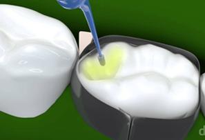 https://dentalfamiliar.cl/wp-content/uploads/2015/11/dd.png
